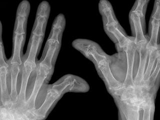 10 worst states for arthritis