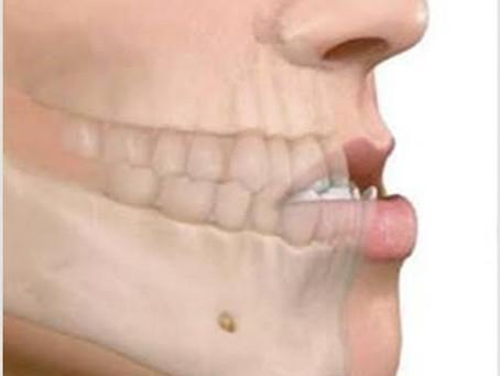 O prognatismo mandibular consiste em uma desarmonia facial envolvendo ossos, dentes e músculos.