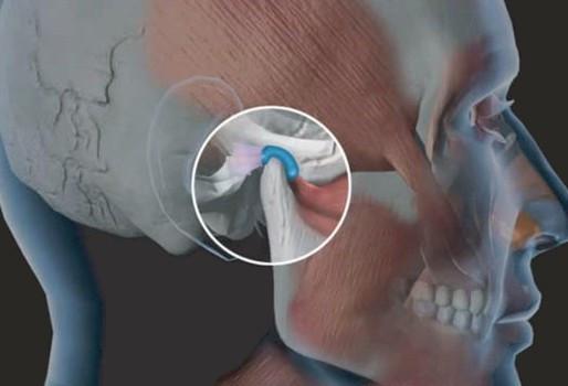 Saiba mais sobre o DTM (distúrbio temporomandibular).