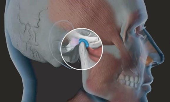 Drª Monica Moreira trata disfunções temporomandibular na Clinica Rothier Odontologia Integrada na Barra da Tijuca Rio de Janeiro