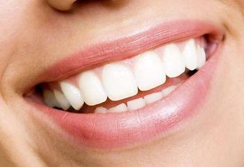 smile-straight-teeth.jpg