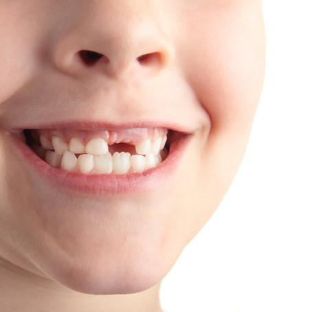 Drª Rosane Kolberg, dentista Invisalign Doctor Porto Alegre Rio Branco Ortodontista para criança