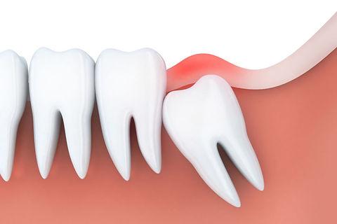 siso-dente-01.jpg