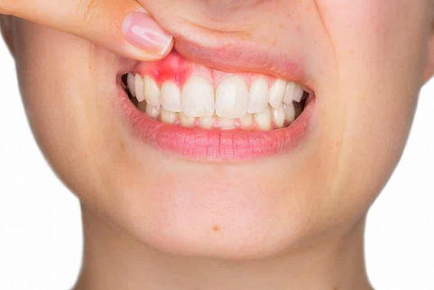 gengiva-machucada-perto-do-dente-990x660