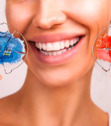 aparelho interceptativo dentista Ipanema