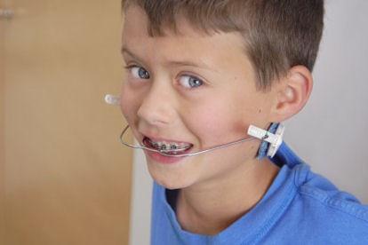 O aparelho dentário extra bucal, popularmente conhecido como Freio de burro ou freio de cavalo pode ser um grande aliado do seu filho, para evitar problemas mais graves no futuro. Procure seu dentista ipanema barra da tijuca niteroi