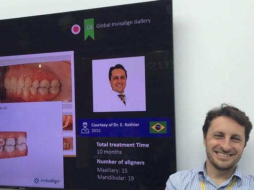 A Clinica Rothier teve 6 casos selecionados, dentre os 20 melhores do Brasil, no stand da Align Tech