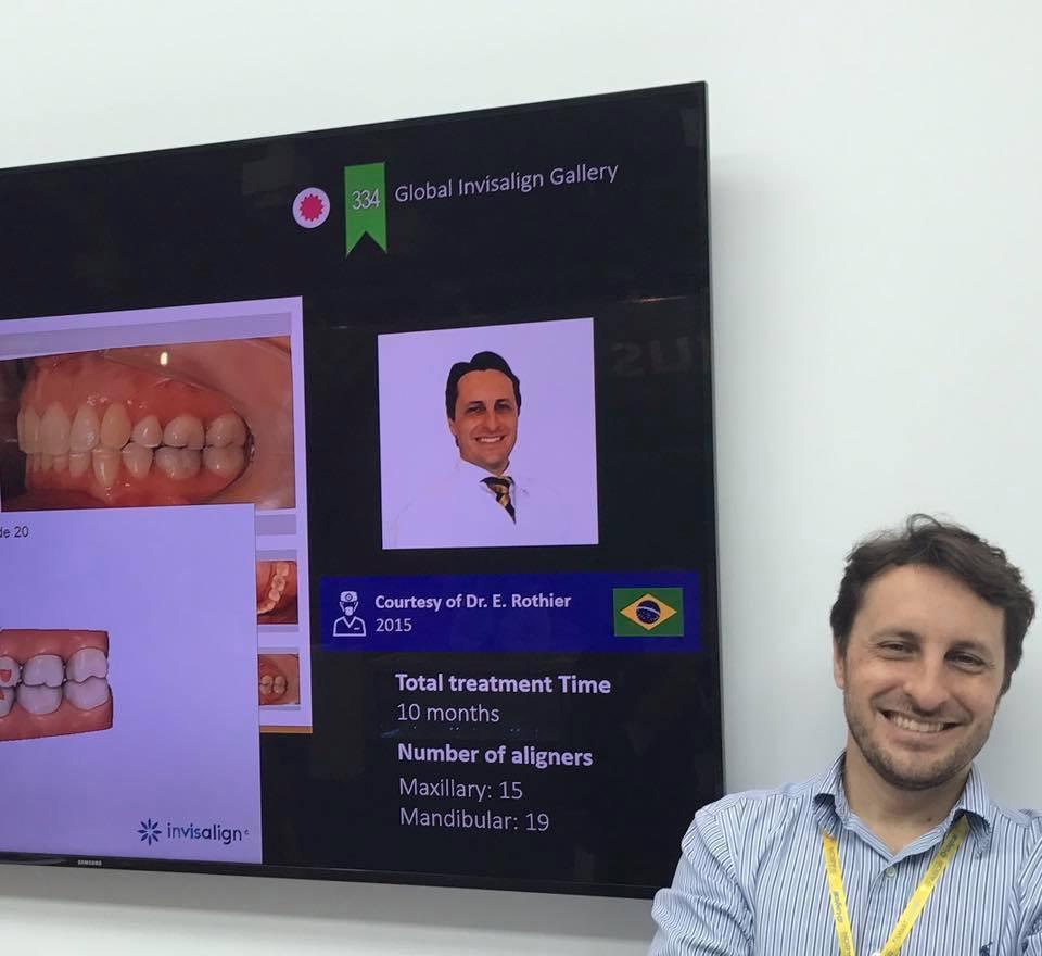 A Clinica Rothier teve 6 casos selecionados, dentre os 20 melhores do Brasil, no stand da Align Technology -  Invisalign - No congresso da ABO