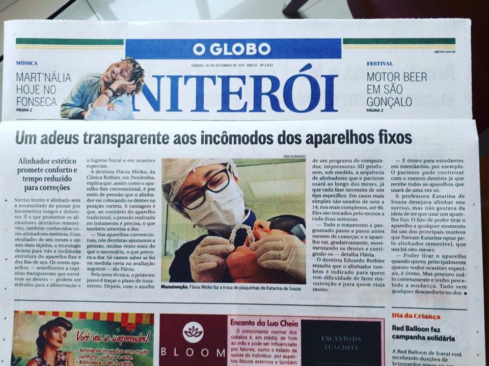 Clinica Rothier saiu no Globo Niteroi Dra Flavia Mitiko explicando sobre o tratamento com aparelho transparente removível