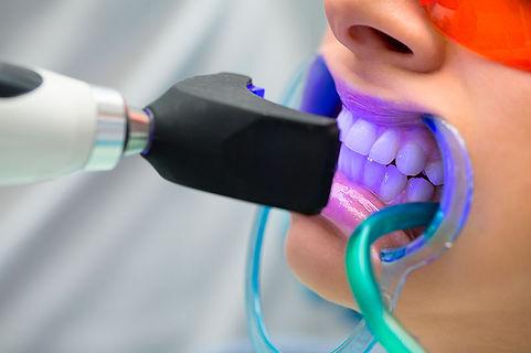 clareamento-dental-laser-preco-2.jpg