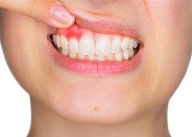 periodontite.jpg