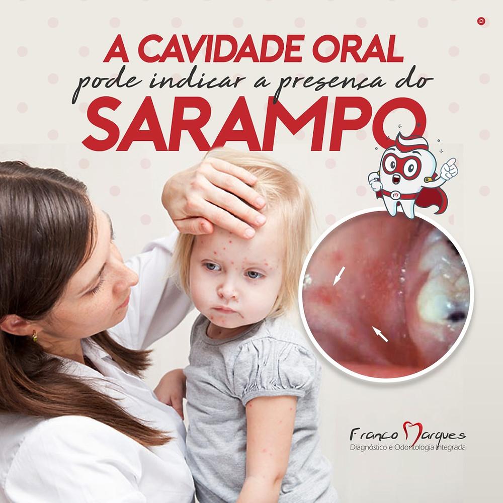 Epidemia de sarampo, vale ressaltar que a boca também pode apresentar manifestações desta infecção. Dr Cesar Noce estomatologista na Clinica Rothier Barra da Tijuca