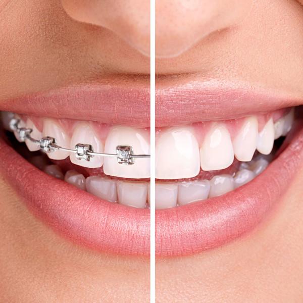 Aparelho fixo convencional ou aparelho removível (Invisalign)? Clinica Rothier dentista Ipanema Barra da Tijuca Niteroi