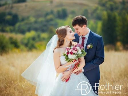 Aparelho dentário ideal para os noivos