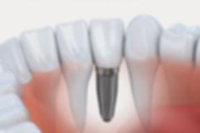implante-e1470681209921.jpg