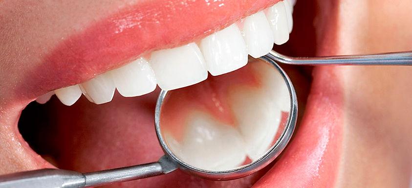 periodontia-2.jpg