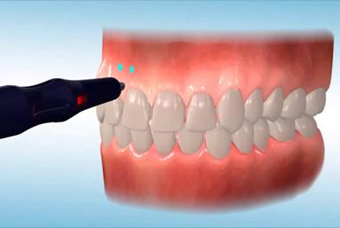 A alveolocentese (nome técnico da aplicação do Propel) é um procedimento simples, rápido e indolor,  É realizado um estímulo ósseo local que estimula o metabolismo ósseo na região e permite uma movimentação dentária. Clinica Rothier Ipanema Barra da Tijuca Niteroi