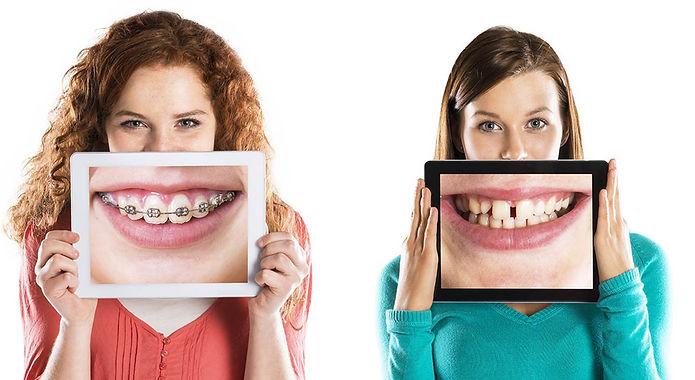 Tratamento ortodontia ana carolinha junq