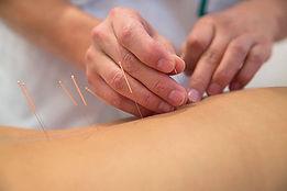 acupuncture image.jpg