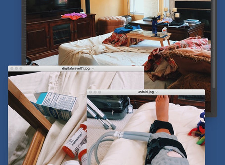 ACL RECOVERY - DAY 3