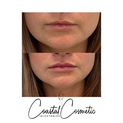 Natural lip augmentation