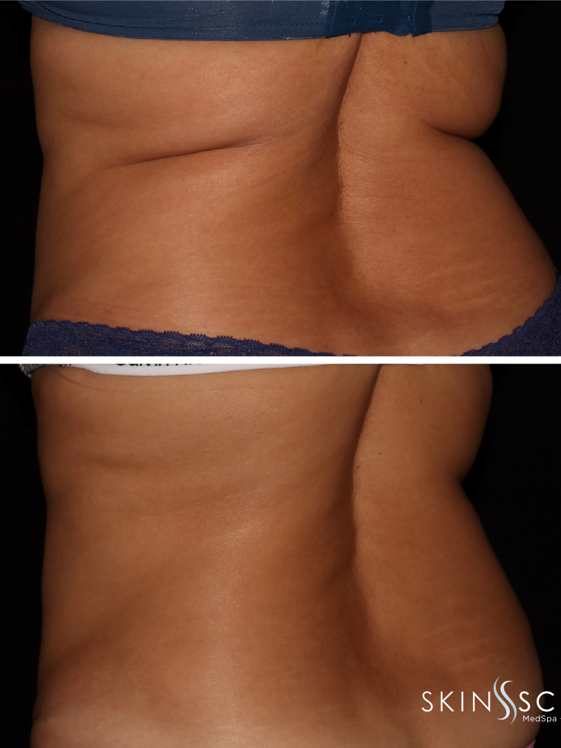 Cool Sculpting Before and After Socail-2