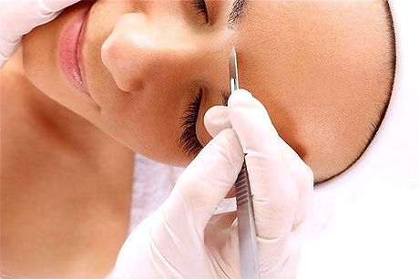 SkinSculpt Medical Spa: Dermaplaning for silky soft skin in Ogden, Utah