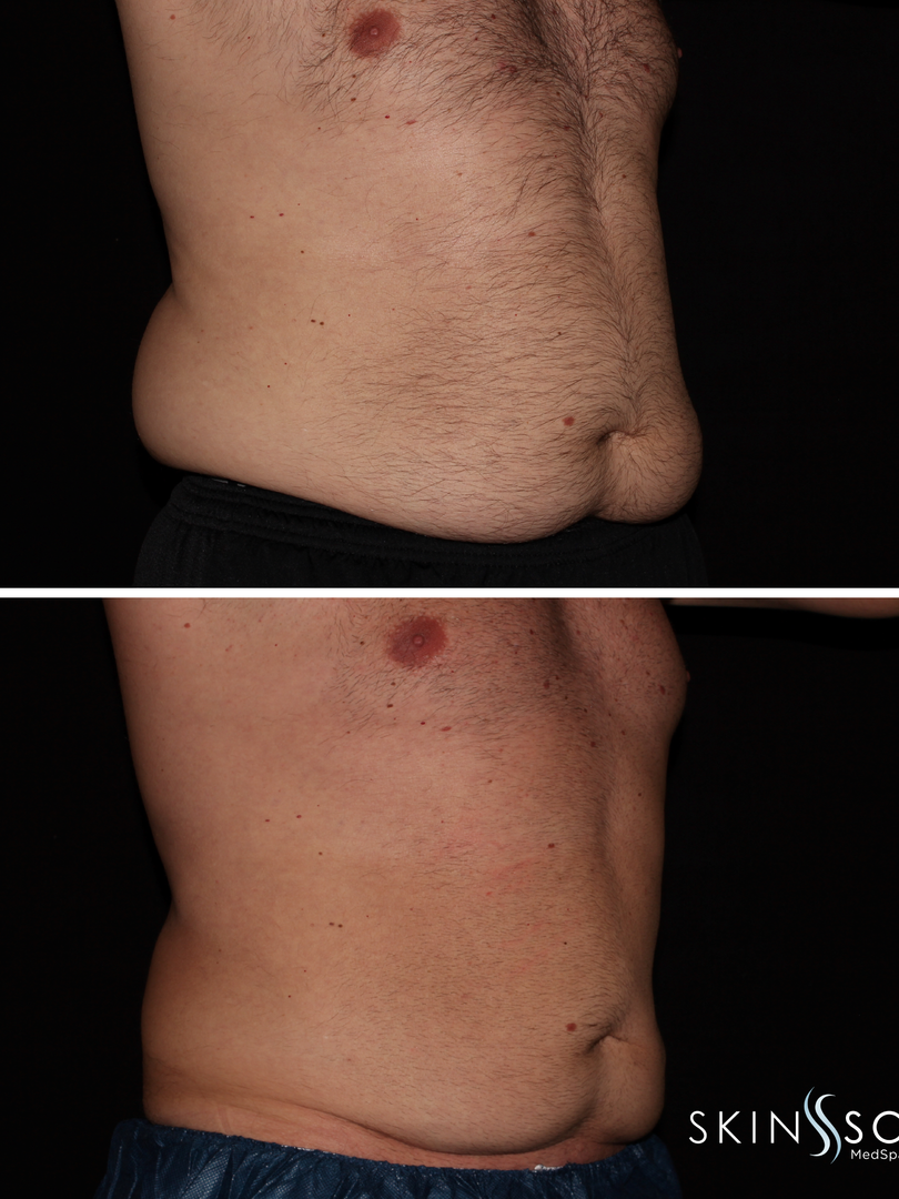 Cool Sculpting Before and After Socail-0