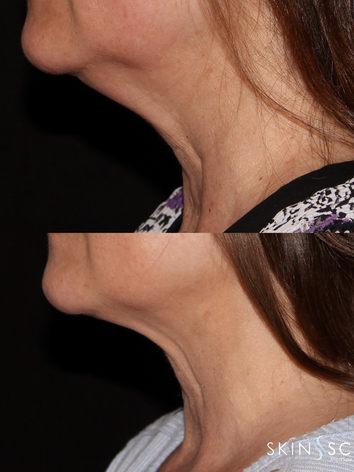 CoolSculpting Chin Results at SkinSculpt MedSpa in Ogden, Utah -1.jpg