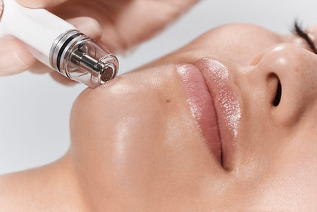 Diamond Glow DermalInfusion at SkinSculpt MedSpa in Ogden, Ut