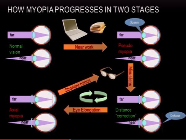 myopia progres.png