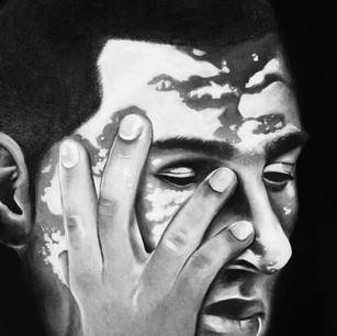 Man with Vitiligo