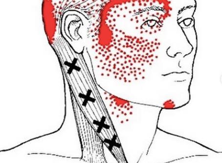 Nacken und- oder Kopfschmerzen? Teil 2 DER STERNOCLEIDOMASTOIDEUS-MUSKEL