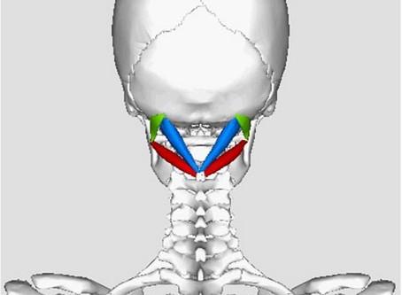 Nacken und-oder Kopfschmerzen? Teil 1 Suboccipitales Dreieck und Spannungskopfschmerz