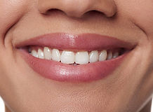 dental-health-cropped-beautiful-young-wo