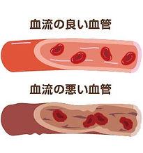こまざわ整骨院_血流の悪化-50.jpg