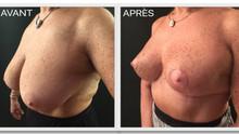 Réduction mammaire après ménopause