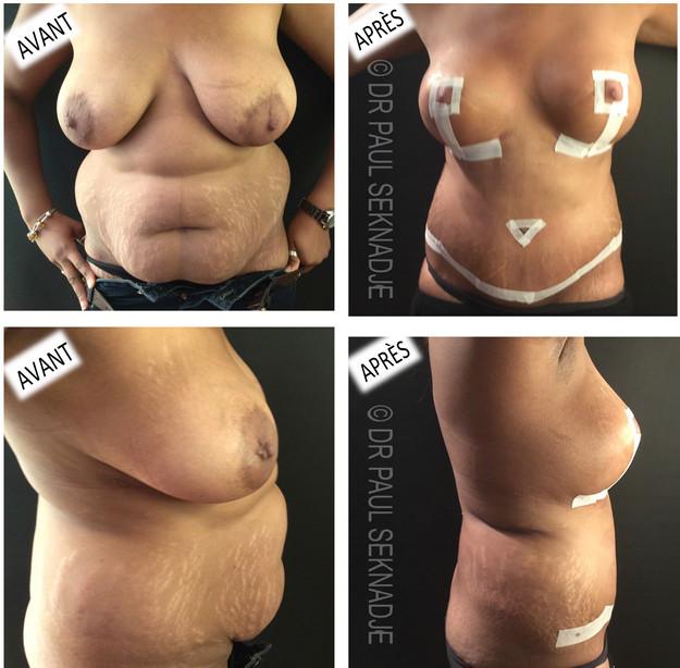Chirurgie du ventre et des seins