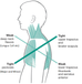 What Is Your Shoulder Pain?
