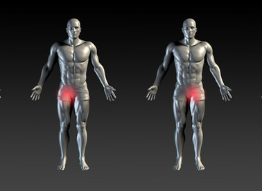 Groin Pain - What is it and Why?