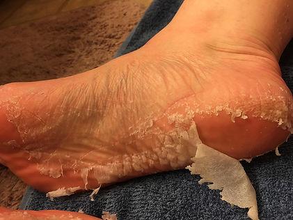Foot-Peel.jpg