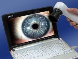 Iriscope,_laptop,_eye_image.jpg