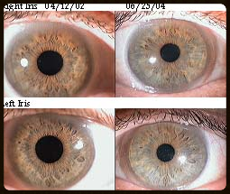 BEFORE/AFTER IRIDOLOGY CASE STUDY