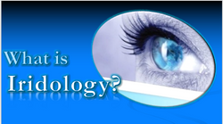 What is Iridology.png