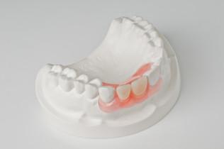 jiahong-dental-lab-shenzhen-china-crwon-
