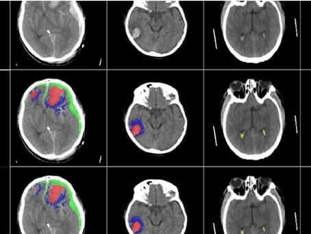 ¿Qué sabes de las lesiones cerebrales?