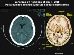 Brain Injury Illustration