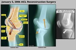 Knee Surgery Medical Illustration
