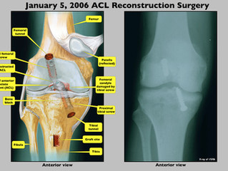 APVisuals's Medical Illustrations - How do we get it done?