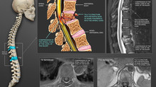 Colorization of MRIs and X-Rays - South Florida Medical Illustration